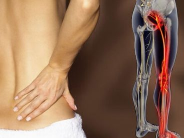 Treatment Of Sciatica Works Solely Underneath These Conditions